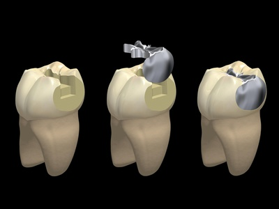 銀歯と合着