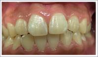 歯垢でざらざらな歯