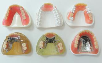 入れ歯の画像
